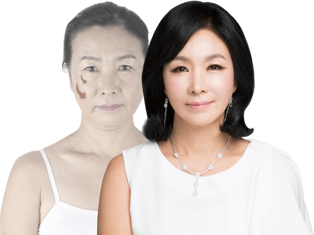 banobagi plastic surgery model